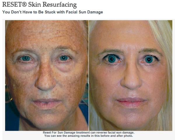 Reset Skin Laser Resurfacing